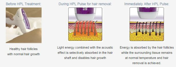 HPL hair removal process
