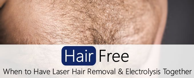 When To Have Laser Hair Removal And Electrolysis Together Hair Free Life