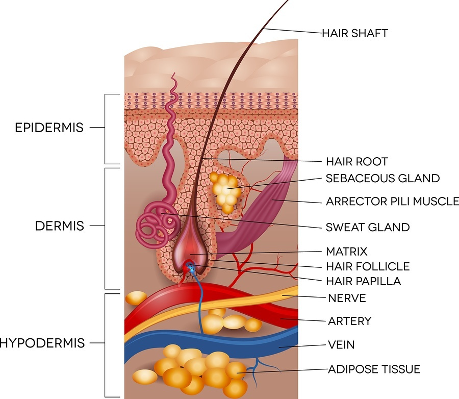Ingrown Hair – Causes, Treatment and Prevention - Hair Free Life