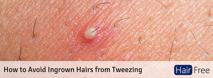How To Avoid Ingrown Hairs From Tweezing Hair Free Life