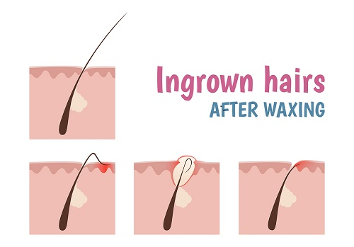 ingrown toenail care instructions