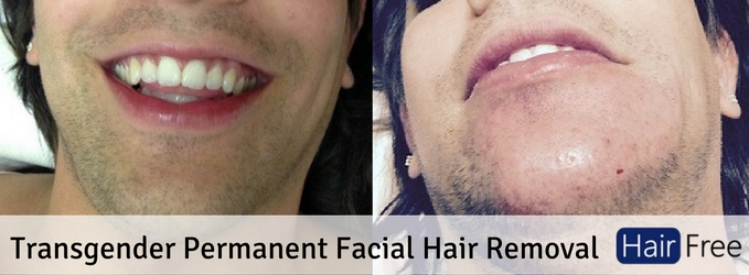 Transgender permanent facial hair removal the ultimate guide solutioingenieria Choice Image