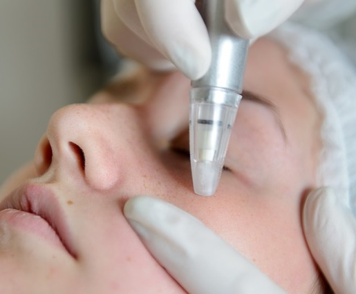 microdermabrasion woman face